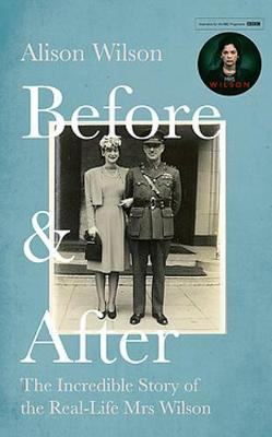 Before & After: The Incredible Story of the Real-life Mrs Wilson by Alison Wilson