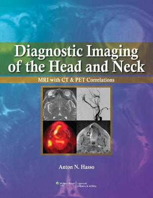 Diagnostic Imaging of the Head and Neck by Anton N. Hasso