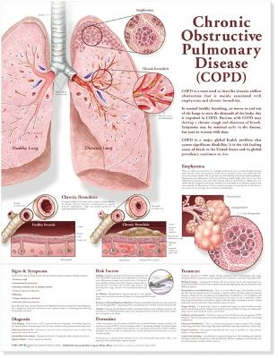 Chronic Obstructive Pulmonary Disease Anatomical Chart by Anatomical Chart Company