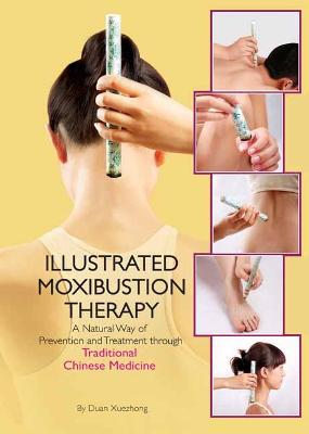 The Illustrated Moxibustion Therapy: A Natural Way of Prevention and Treatment through Traditional Chinese Medicine book