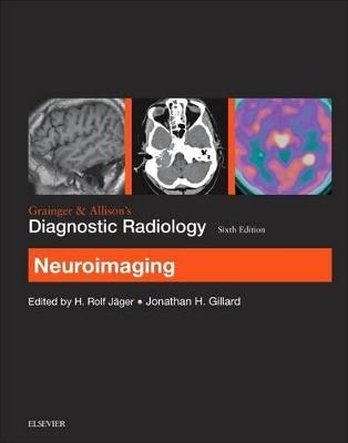 Grainger & Allison's Diagnostic Radiology: Neuroimaging by Jonathan H. Gillard