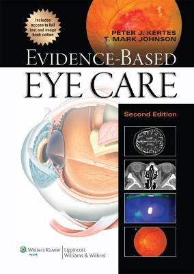 Evidence-Based Eye Care book