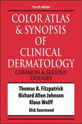 Color Atlas and Synopsis of Clinical Dermatology by Thomas B. Fitzpatrick