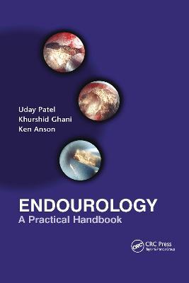 Endourology by Uday Patel