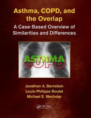 Asthma, COPD, and Overlap book