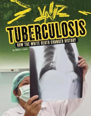 Tuberculosis by Mark L Lewis
