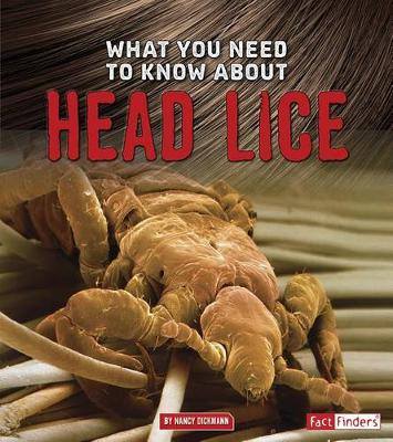 What You Need to Know about Head Lice book