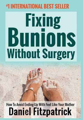 Fixing Bunions Without Surgery by Daniel Fitzpatrick