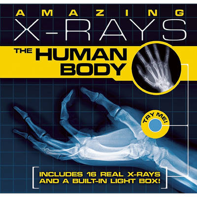 Amazing X-Rays: The Human Body by Paul Beck