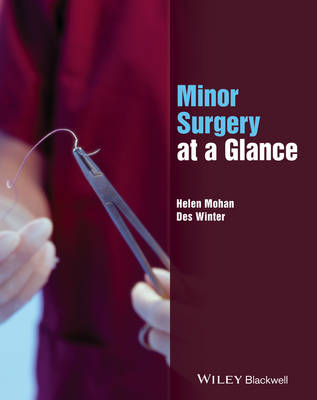 Minor Surgery at a Glance by Helen Mohan