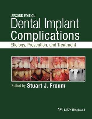 Dental Implant Complications by Stuart J. Froum