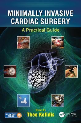 Minimally Invasive Cardiac Surgery: A Practical Guide by Theo Kofidis