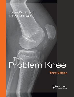 The Problem Knee book