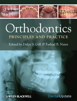 Orthodontics - Principles and Practice by S. Gill