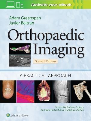 Orthopaedic Imaging: A Practical Approach by Adam Greenspan