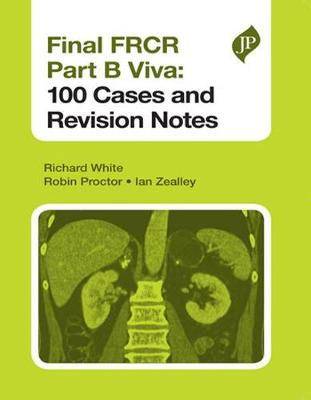 Final FRCR Part B Viva: 100 Cases and Revision Notes by Richard White
