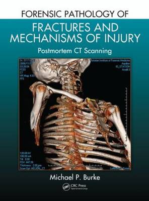 Forensic Pathology of Fractures and Mechanisms of Injury by Michael P. Burke