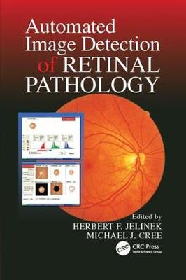 Automated Image Detection of Retinal Pathology by Herbert Jelinek