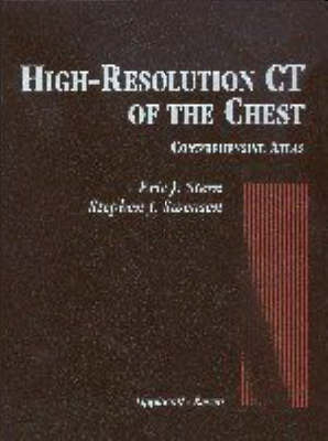 High Resolution CT of the Chest by Eric Stern