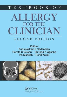 Textbook of Allergy for the Clinician by Pudupakkam K. Vedanthan