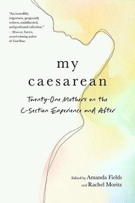 My Caesarean by Amanda Fields
