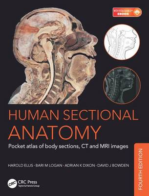 Human Sectional Anatomy: Pocket atlas of body sections, CT and MRI images, Fourth edition by Adrian Kendal Dixon