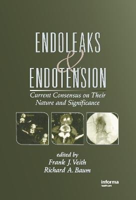 Endoleaks and Endotension by Frank J. Veith