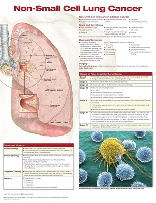 Non-Small Cell Lung Cancer by Anatomical Chart Company