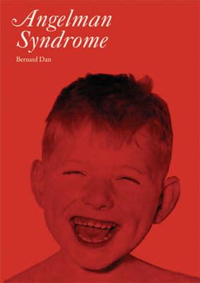 Angelman's Syndrome by Bernard Dan