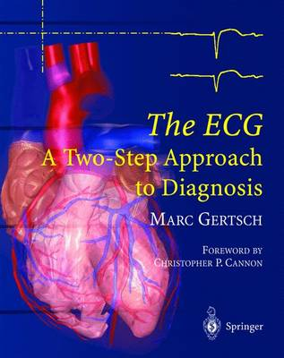 The ECG by C.P. Cannon