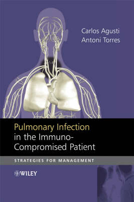 Pulmonary Infection in the Immuno-compromised Patient by Carlos Agusti