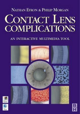 Contact Lens Complications: Interactive Multimedia Tool by Nathan Efron