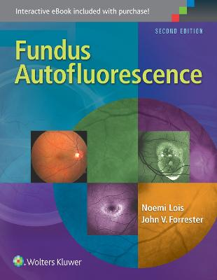 Fundus Autofluorescence by Dr. Noemi Lois