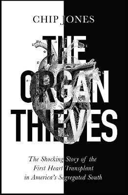 The Organ Thieves: The Shocking Story of the First Heart Transplant in America's Segregated South by Chip Jones