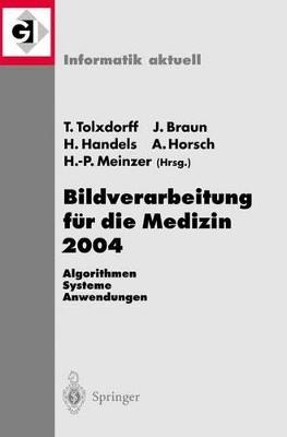 Bildverarbeitung fur die Medizin 2004: Algorithmen, Systeme, Anwendungen by Thomas Tolxdorff