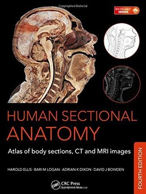 Human Sectional Anatomy: Atlas of Body Sections, CT and MRI Images, Fourth Edition by Adrian K. Dixon