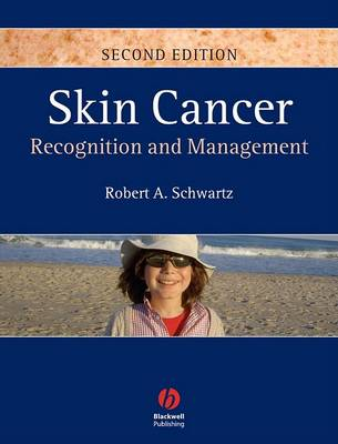 Skin Cancer book