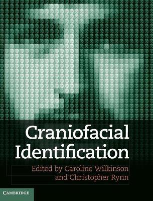 Craniofacial Identification by Prof. Caroline Wilkinson