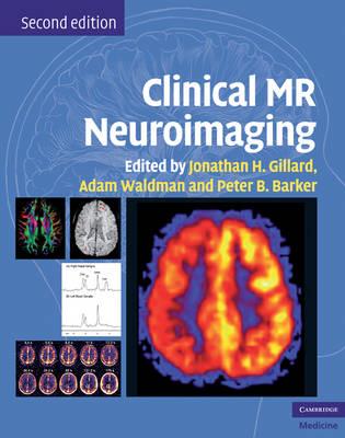 Clinical MR Neuroimaging by Jonathan H. Gillard