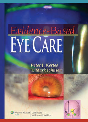 Evidence-based Eye Care: Clinical Trials and Beyond by Peter J. Kertes