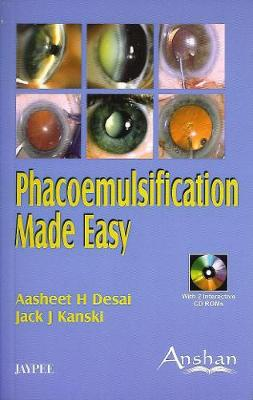 Phacoemulsification Made Easy by Aasheet Desai