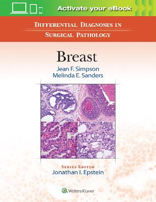 Differential Diagnoses in Surgical Pathology: Breast by Jean F. Simpson