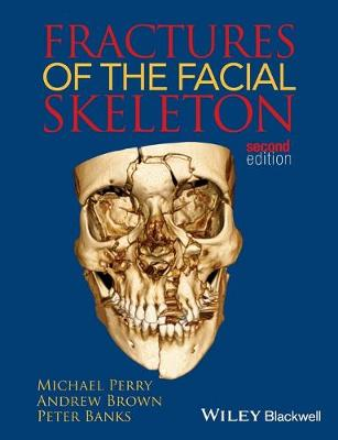 Fractures of the Facial Skeleton by Michael Perry