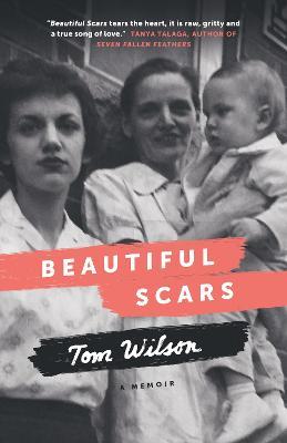 Beautiful Scars by Tom Wilson