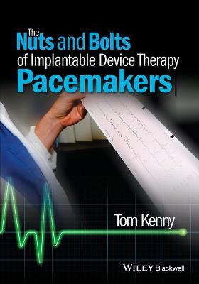 Nuts and Bolts of Implantable Device Therapy by Tom Kenny