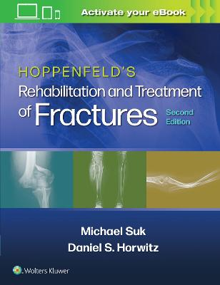 Hoppenfeld's Rehabilitation and Treatment of Fractures book