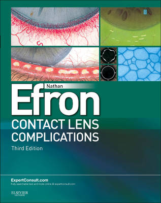 Contact Lens Complications book