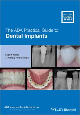The ADA Practical Guide to Dental Implants by Luigi O. Massa