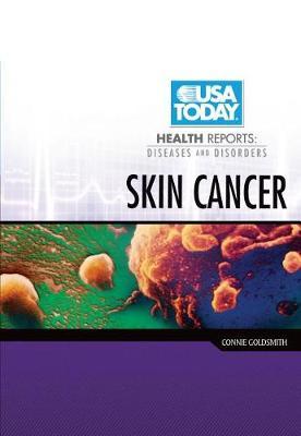 Skin Cancer by Connie Goldsmith
