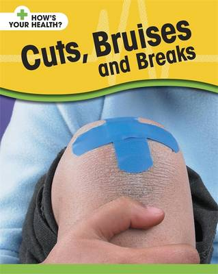 Cuts, Bruises and Breaks by Angela Royston